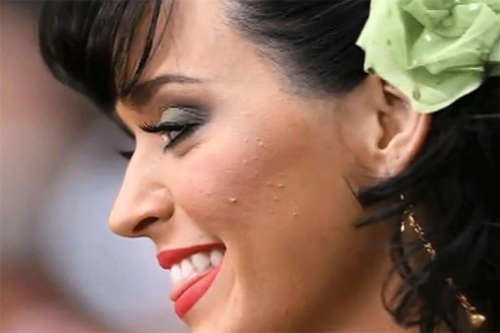 Et puis un jour, j ai découvert l origine de mon acné   Eme Beauté ... 843ee40facc